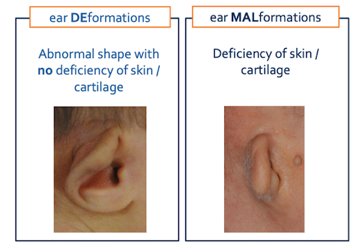 Ear Deformations And Ear Malformations