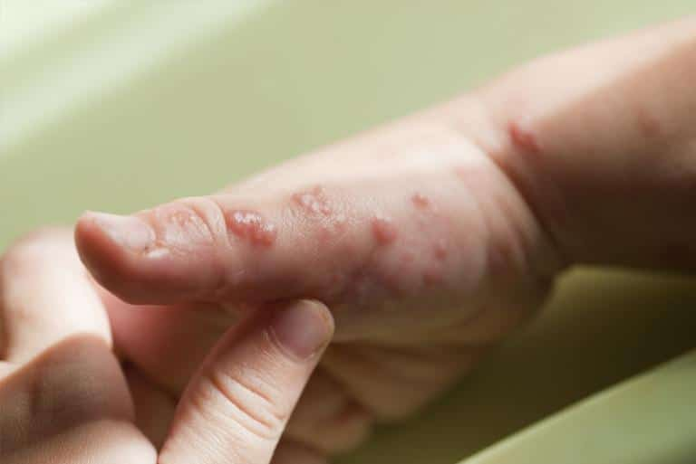 Children With A Skin Infection